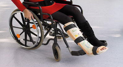 broken leg in wheelchair